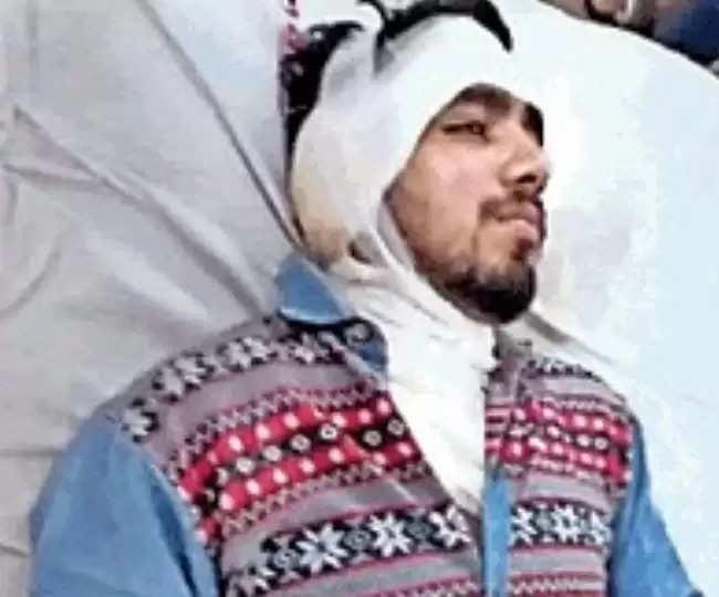 Girl Threw Acid on Young Man : हिसार में अजीबोगरीब घटना, शादी से मना करने पर युवती ने युवक पर फेंका तेजाब
